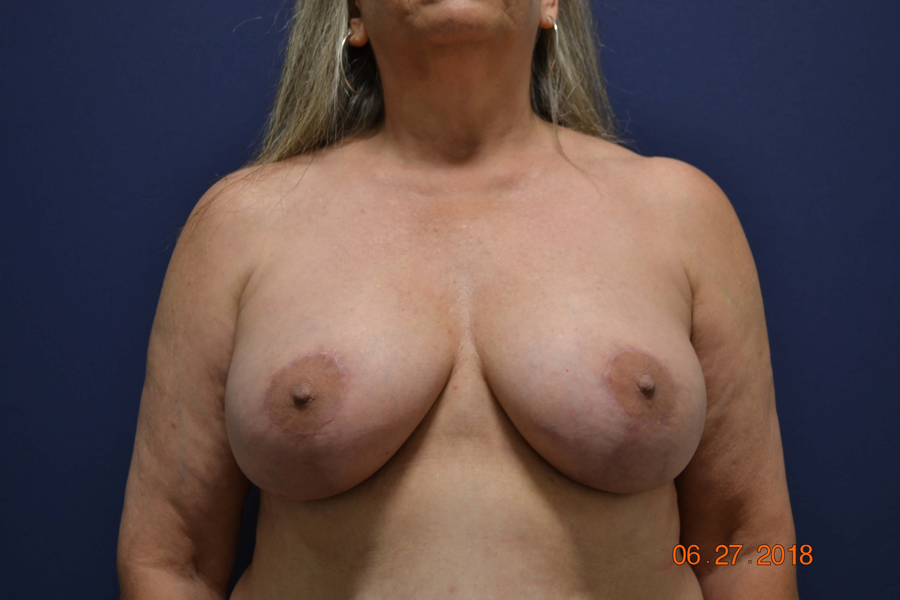 Capsulectomy Exchange and Lift After