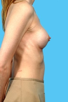 Profile View After