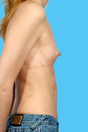 Profile View Before