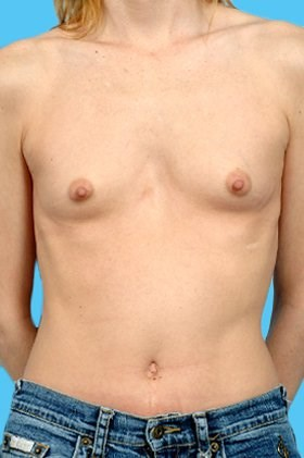 Front View Before