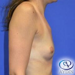 Breat Augmentation Before
