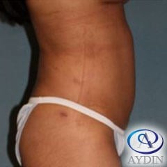 Liposuciton After