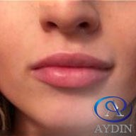 Lip Injectable After