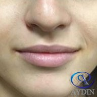 Lip Injectable Before