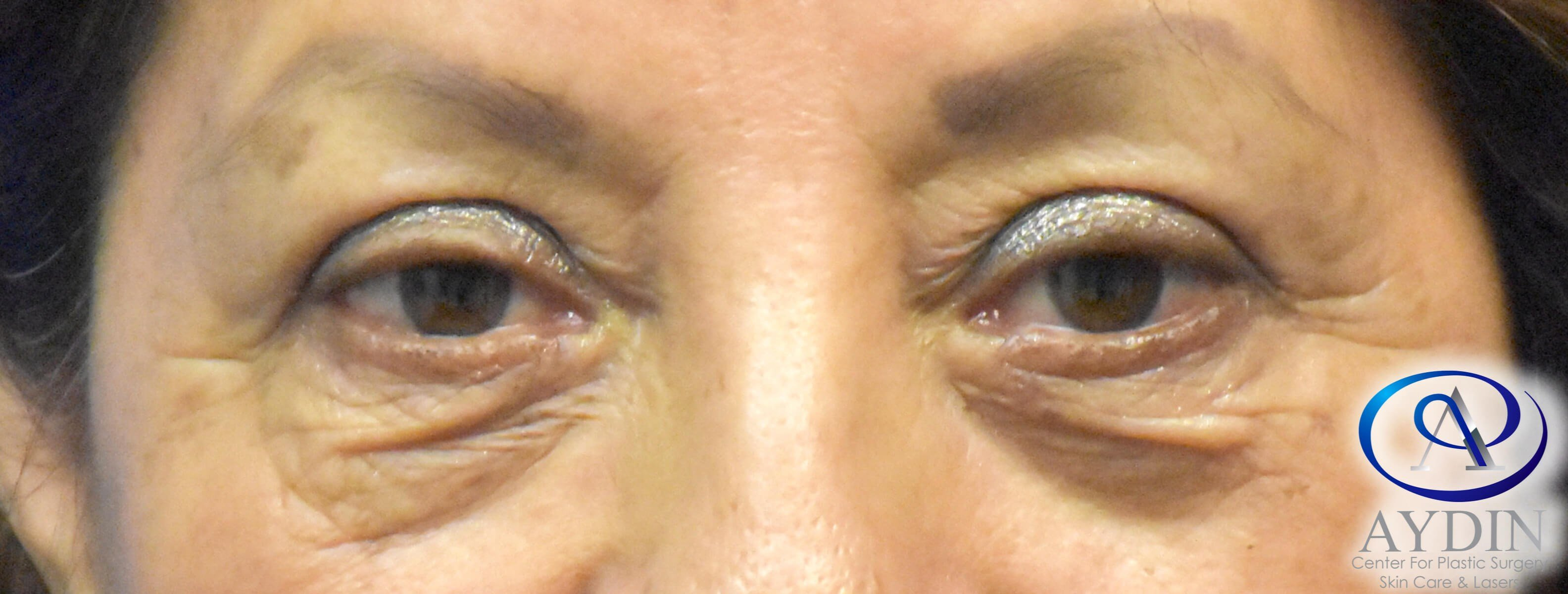 Blepharoplasty Before & After Before