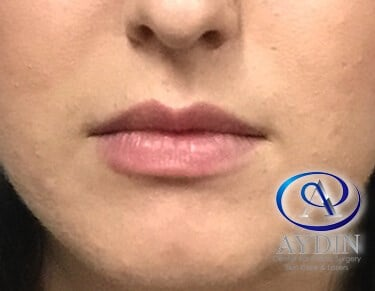 Juvederm Ultra Plus Before
