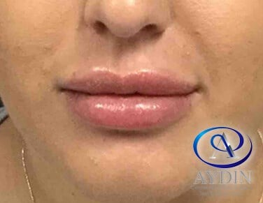 Juvederm Ultra Plus After
