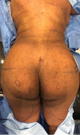 Liposuction 360 After