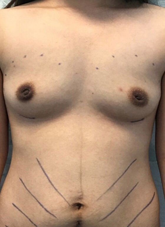 Breast Aug W Local Anesthesia Before
