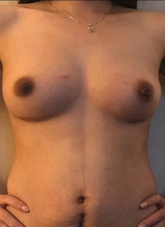 Breast Aug W Local Anesthesia After