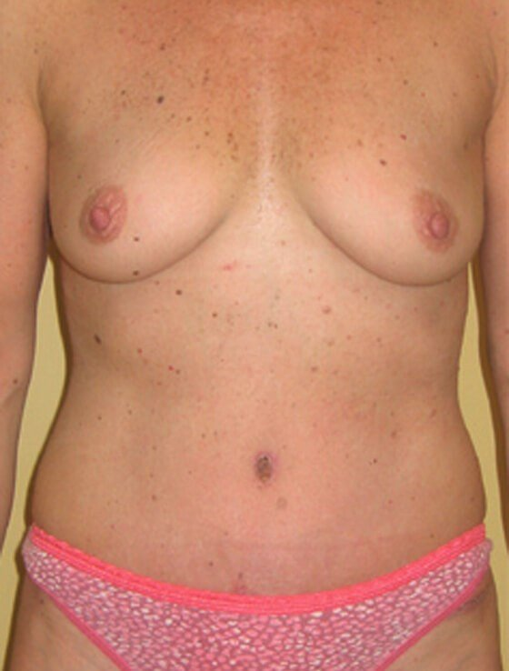 Abdominoplasty by DELVECCHIO After