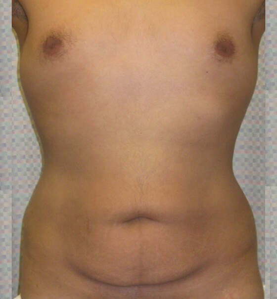 Abdominoplasty by DELVECCHIO Before