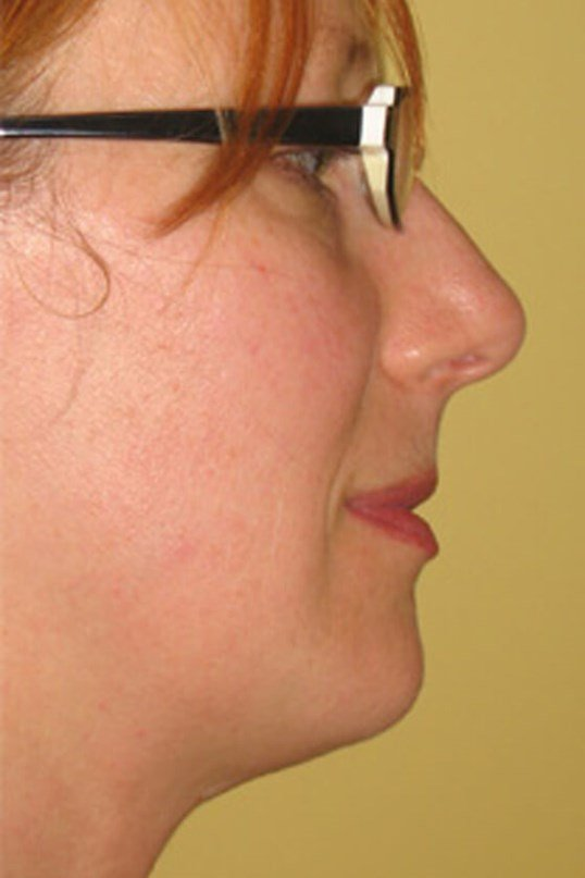 CHIN AUGMENTATION by DELVECCHI After