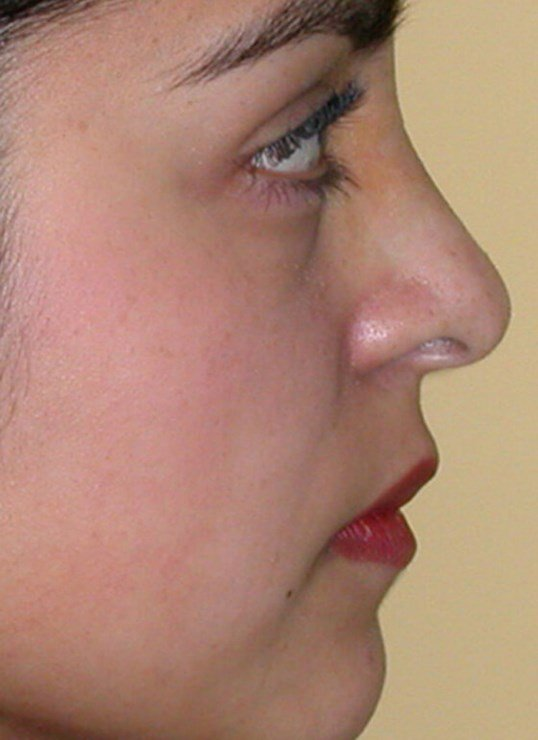 Non Caucasian Rhinoplasty After