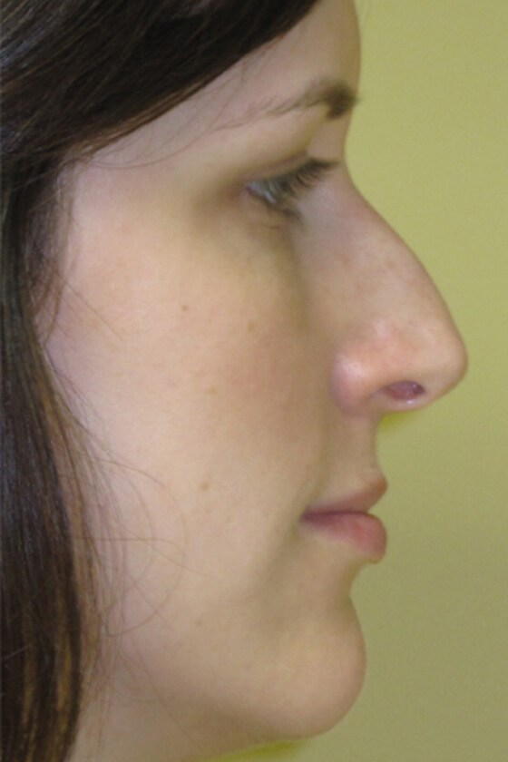 Rhinoplasty by DELVECCHIO Before