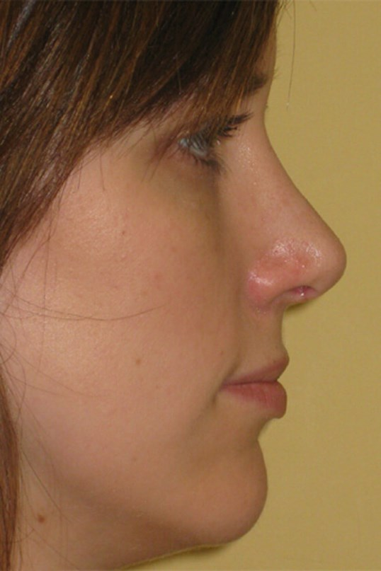 Rhinoplasty by DELVECCHIO After