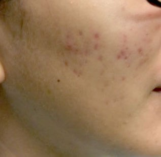Acne Before & After Before