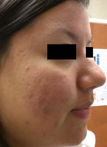 Acne/Acne Scar Treatment Before Acne Treatment