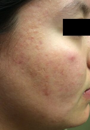 Acne/Acne Scar Treatment Before Chemical Peel for Scars
