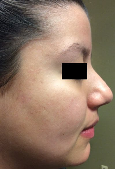 Acne/Acne Scar Treatment After 4 Chemical Peels
