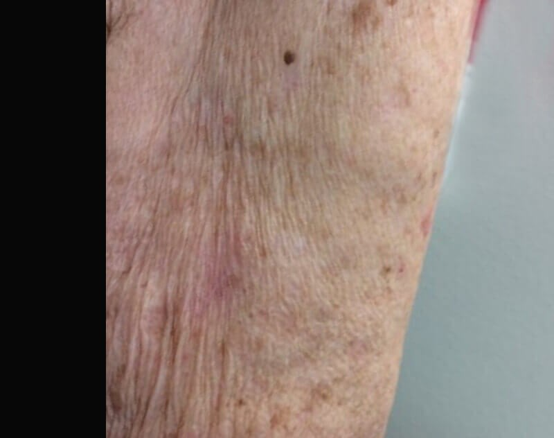 Mohs Micrographic Surgery 3 Months After