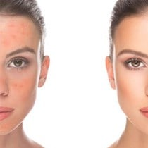 Rosacea Treatment*