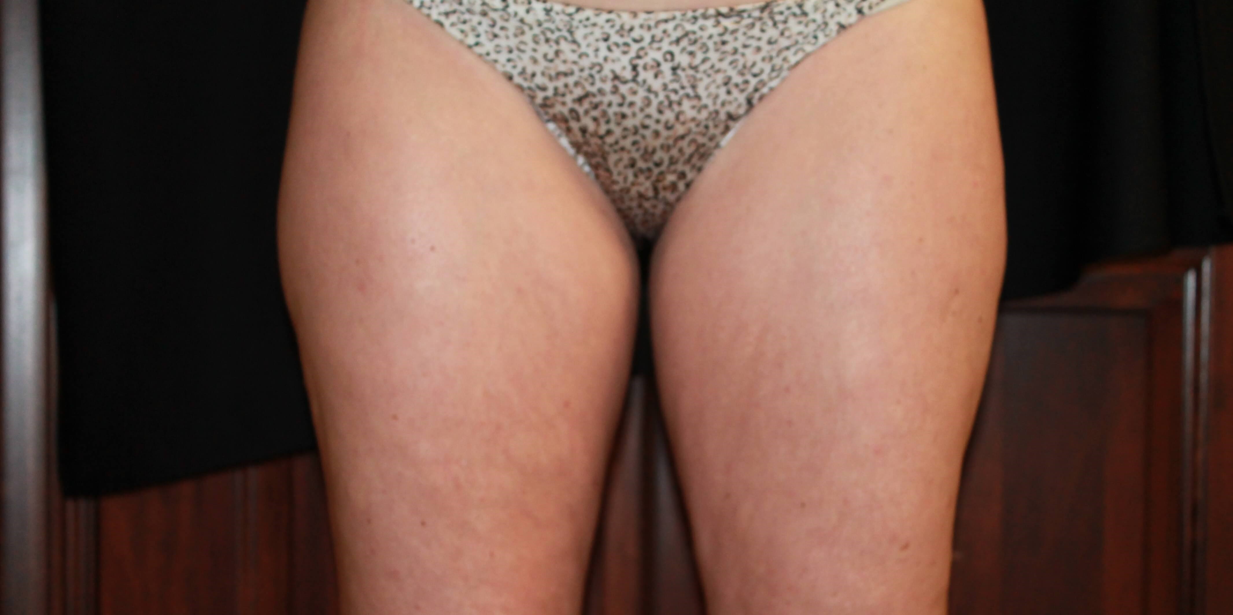 inner thighs Before treatment