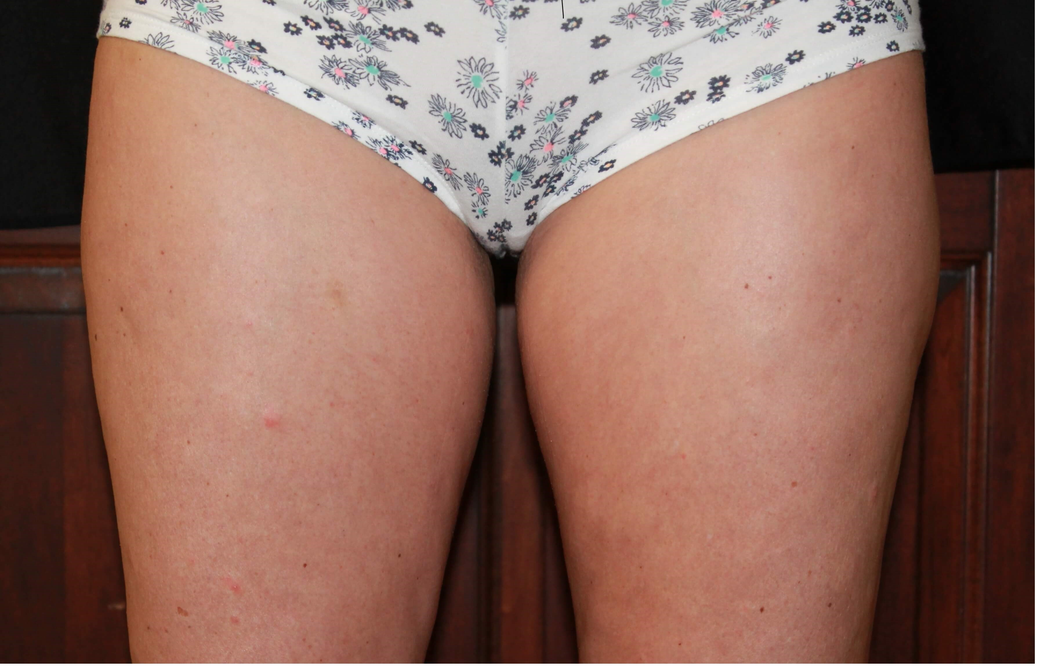 inner thighs 60 days post treatment