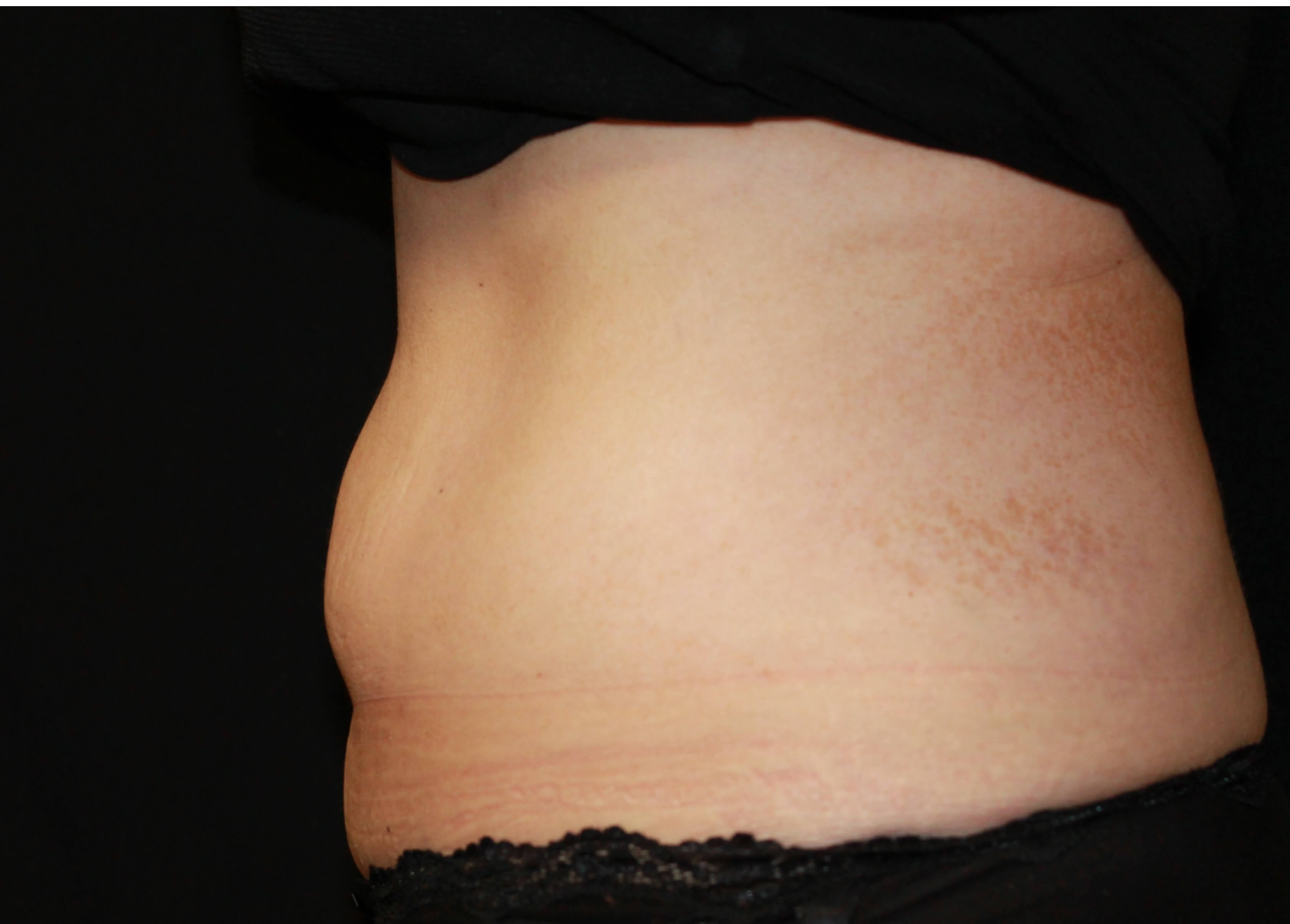 lower belly Before treatment