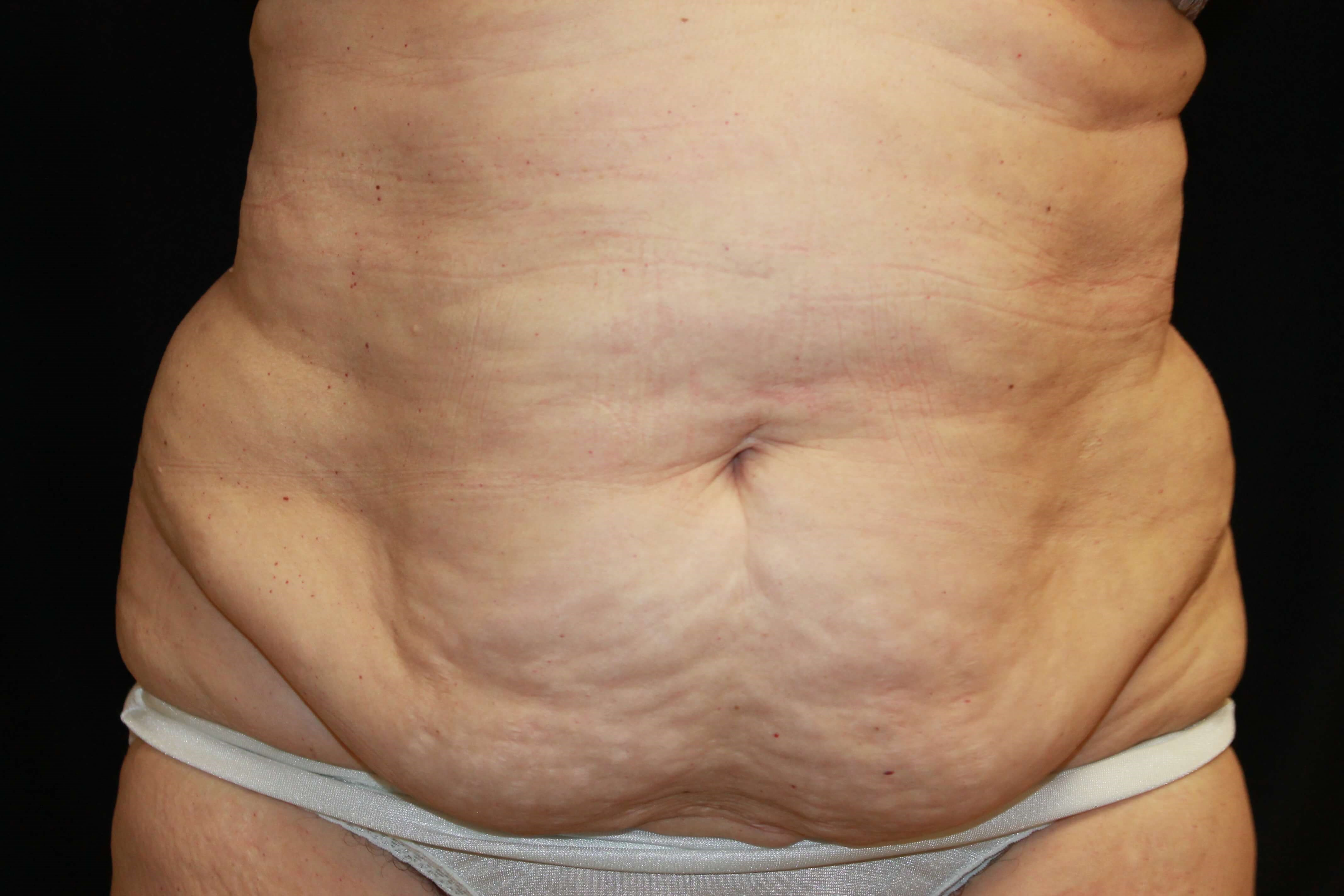 Belly Treatment before coolsculpting treatmet