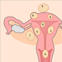 Removal of Fibroids
