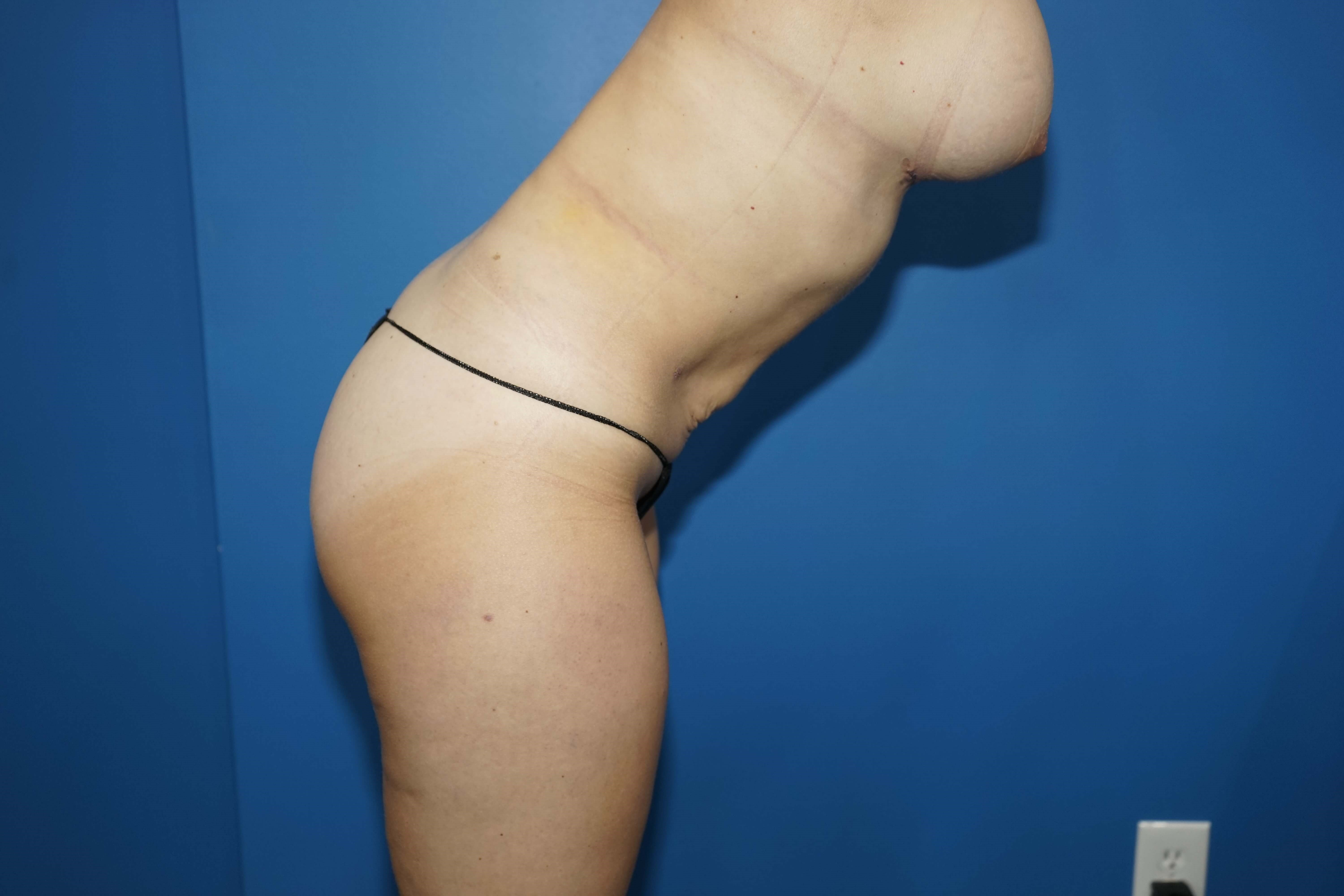 Westlake Woman has Liposuction After