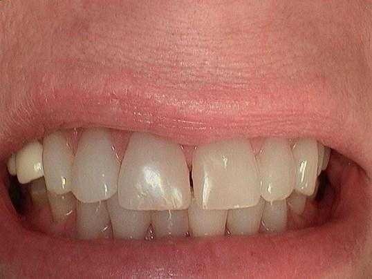 Beautiful teeth in an hour! Before 1