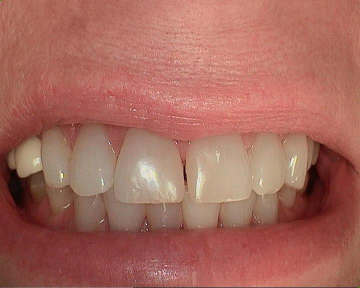 Beautiful teeth in an hour! Before 1
