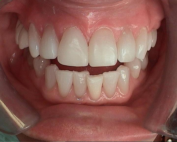Beautiful teeth in an hour! After