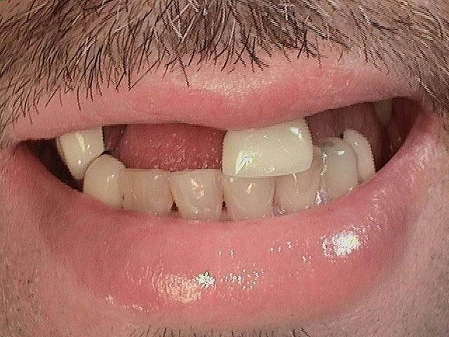 WOW! Full Arch Implant Patient Before