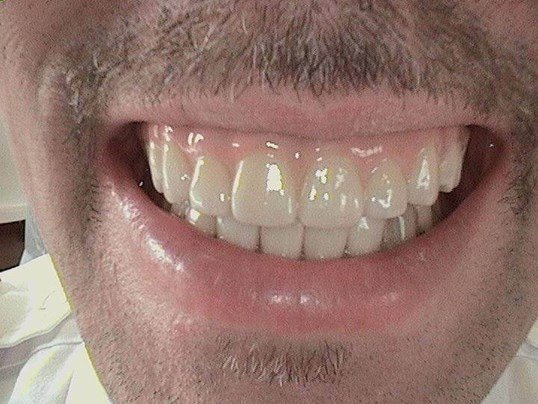 WOW! Full Arch Implant Patient After