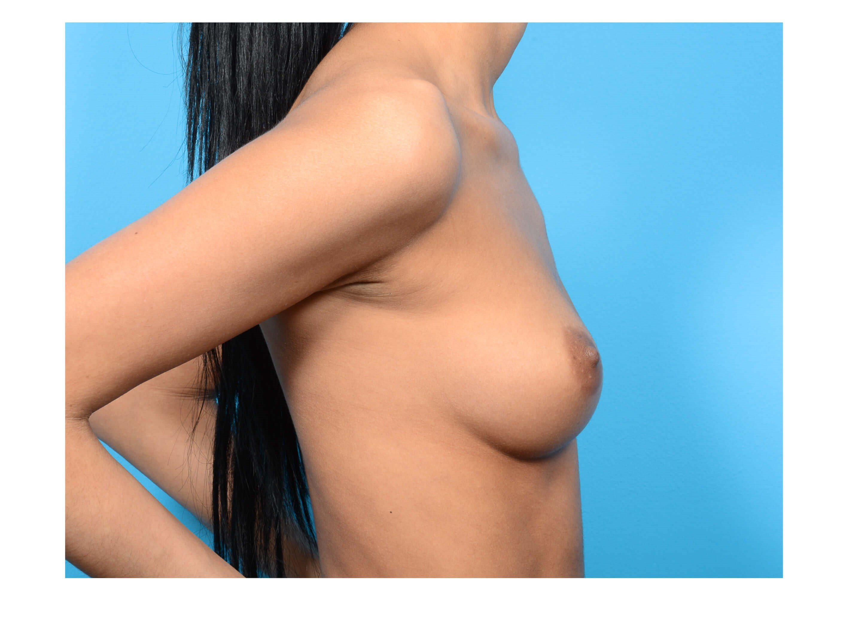 Breast Augmentation Profile Before