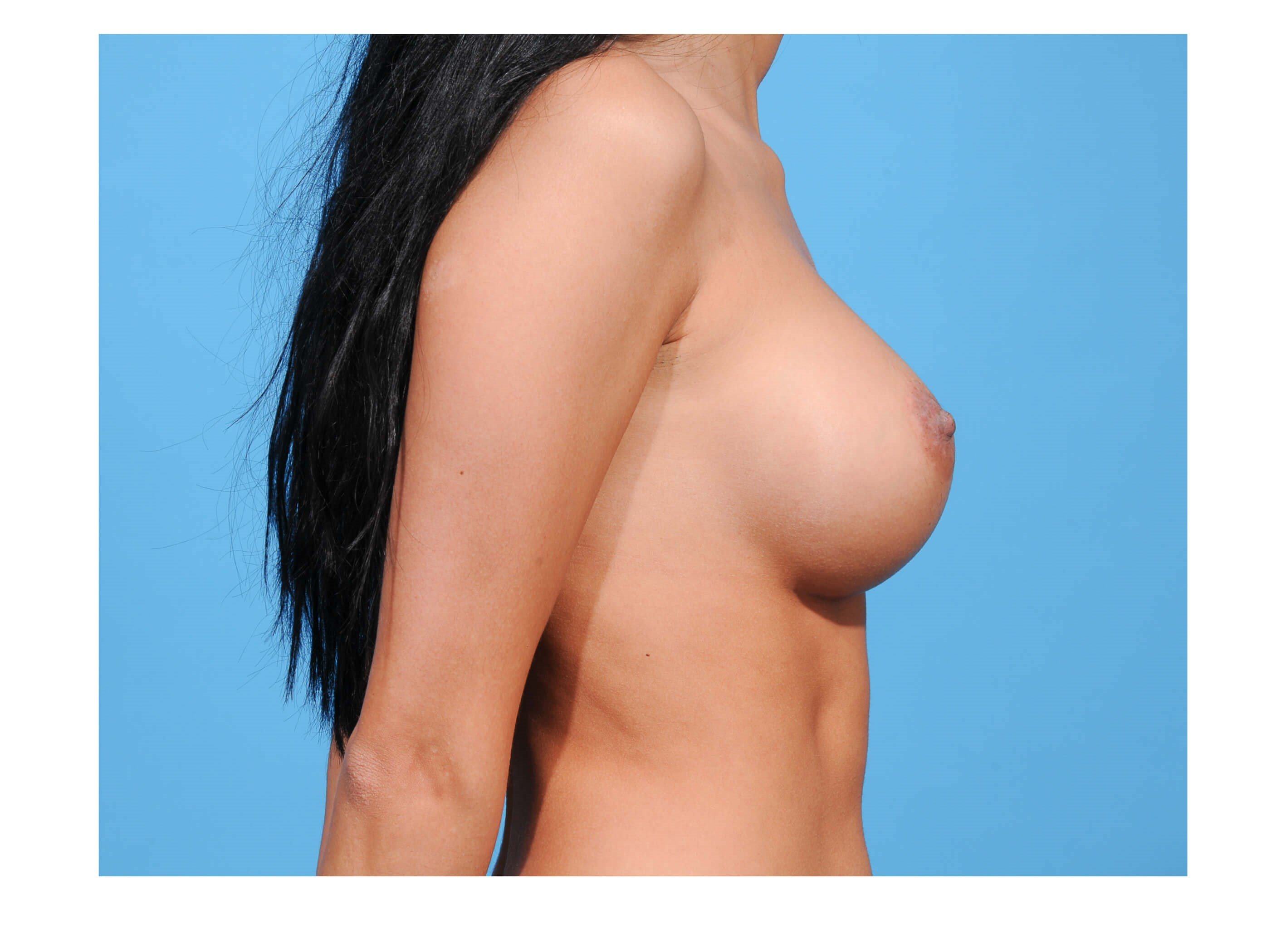 Breast Augmentation Profile After