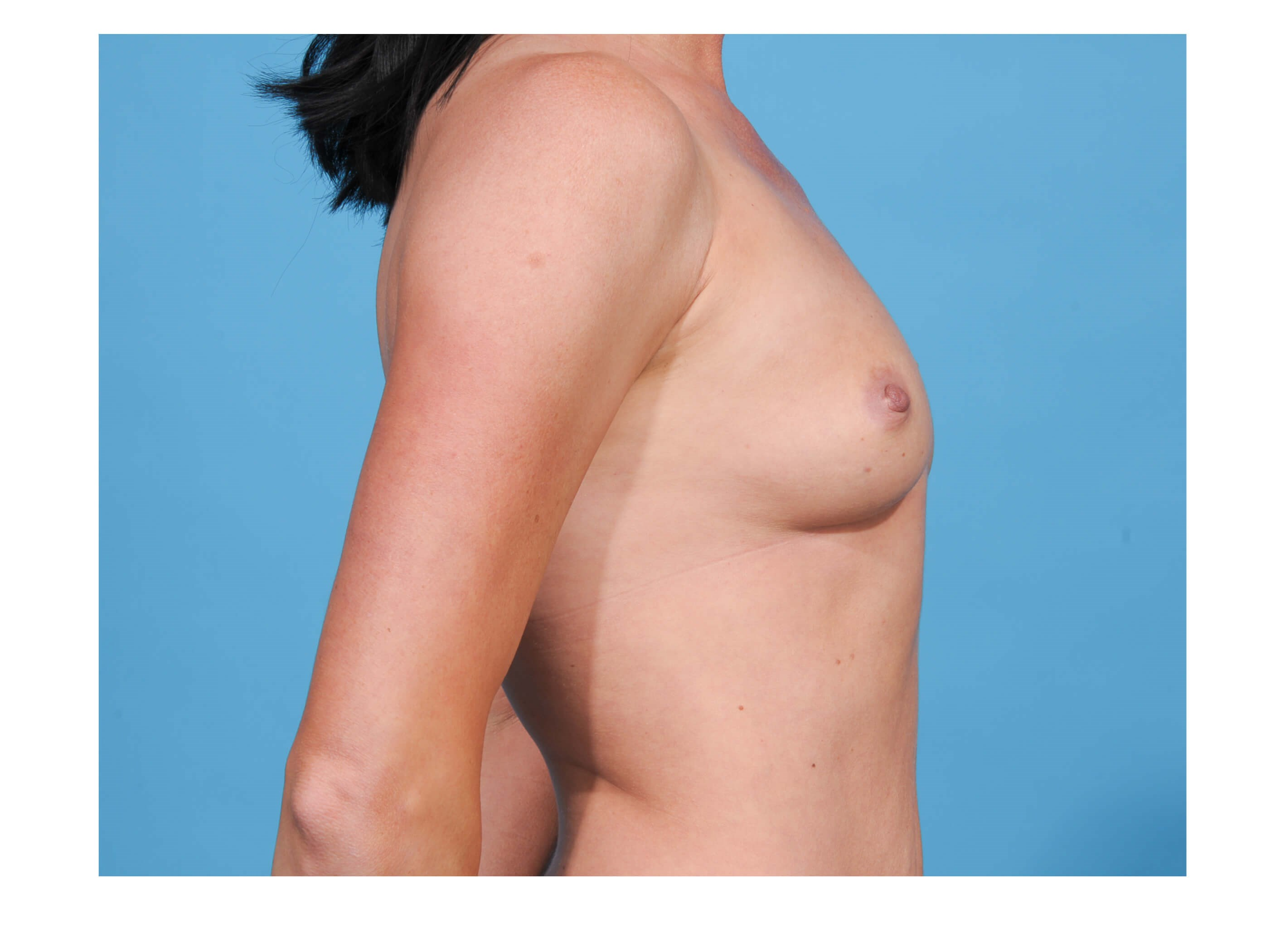 Breast Augumentation R Profile Before