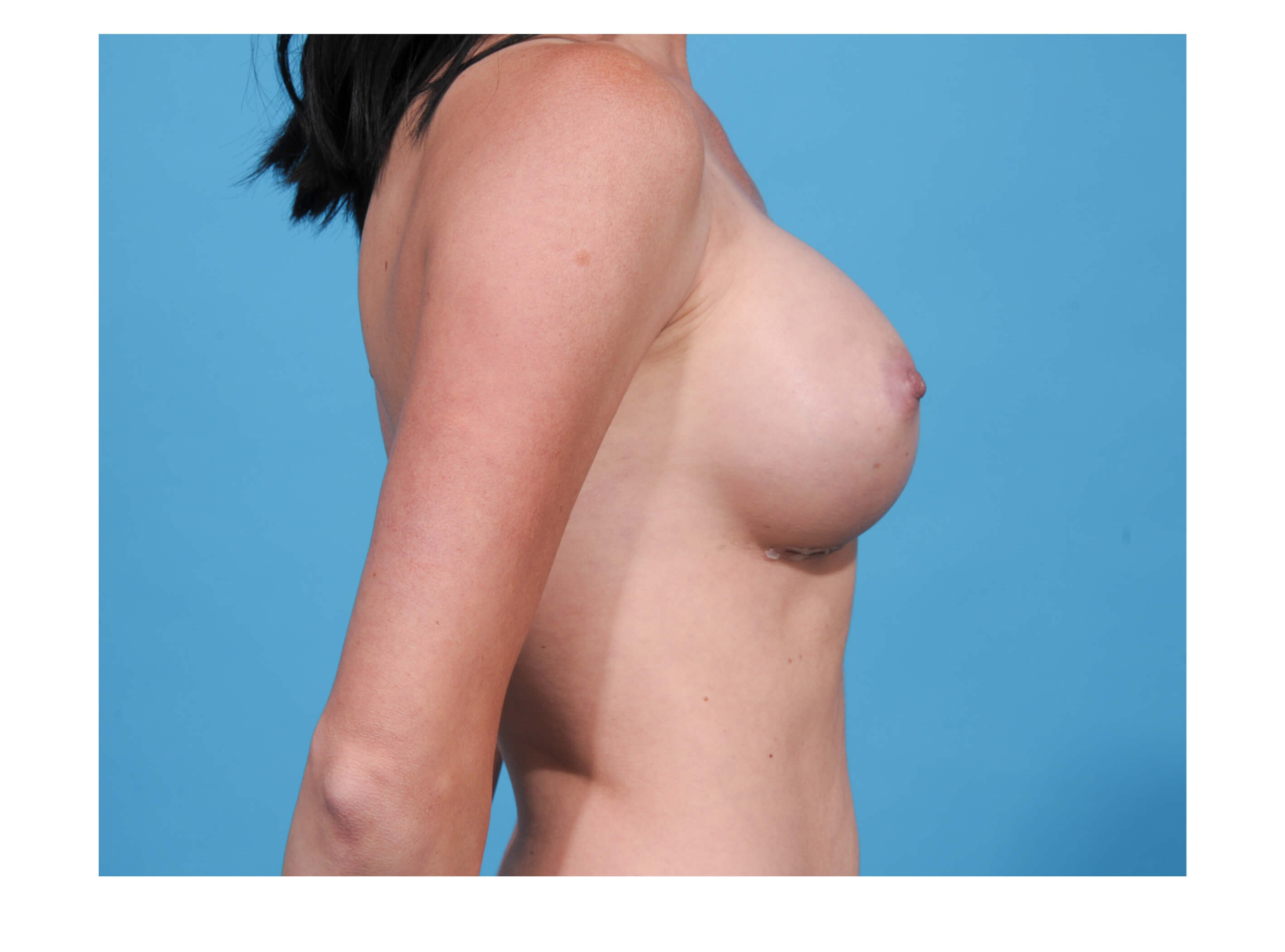 Breast Augumentation R Profile After