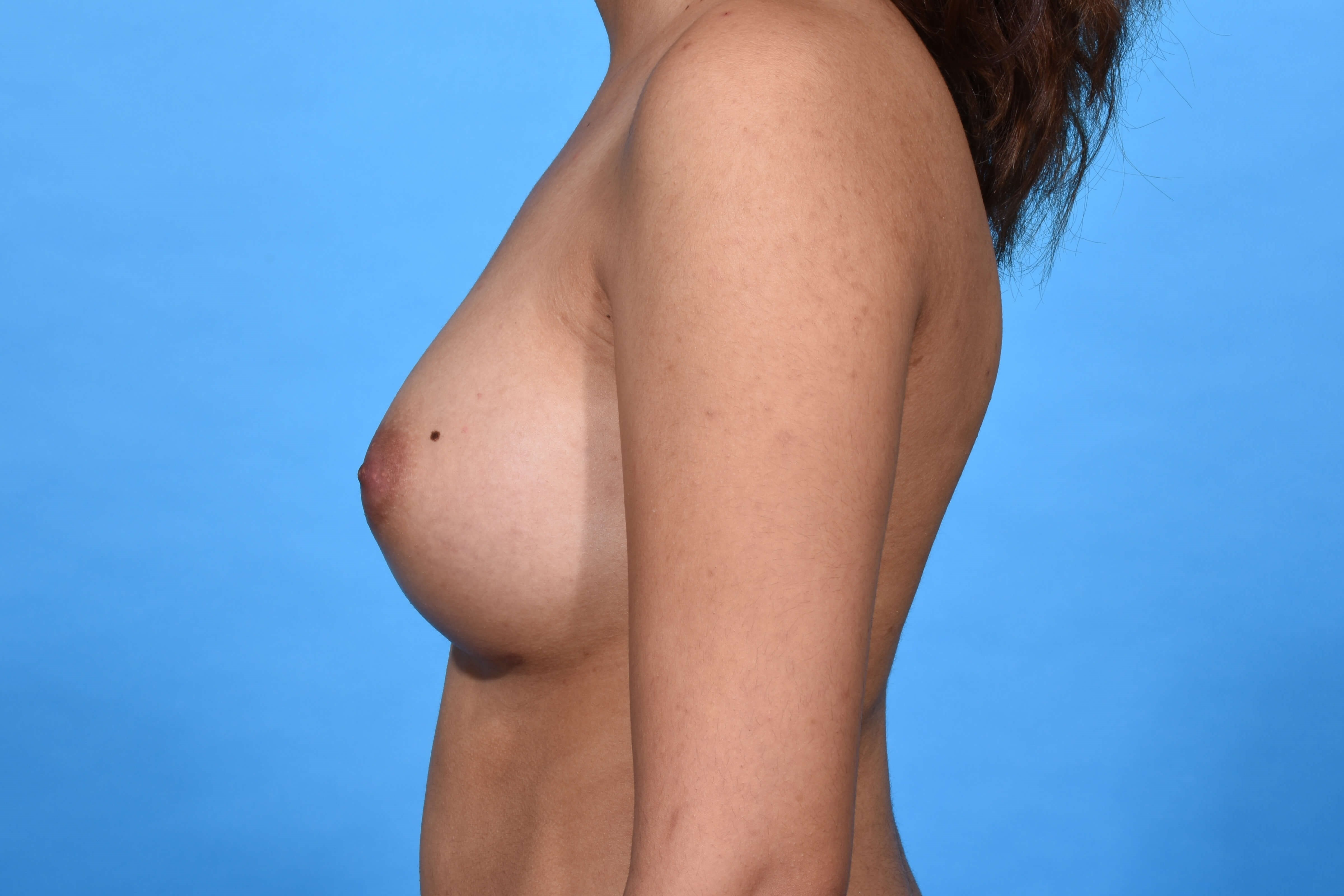 Breast Augmentation L Profile After