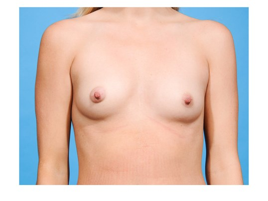 Breast Augmentation Dallas Before