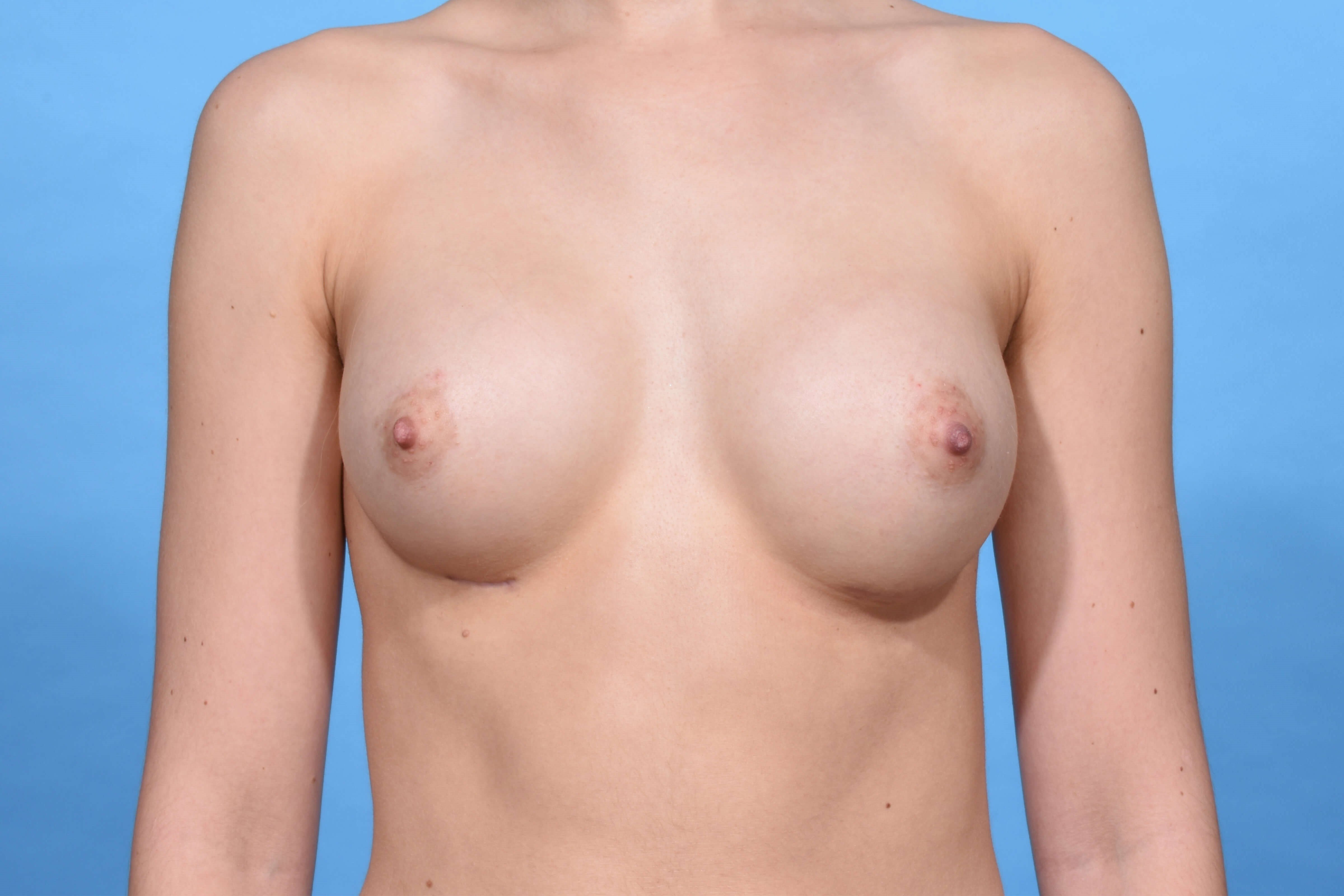 Breast Augmentation Dallas After