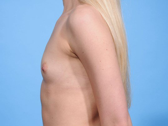 Breast Augmentation L Profile Before