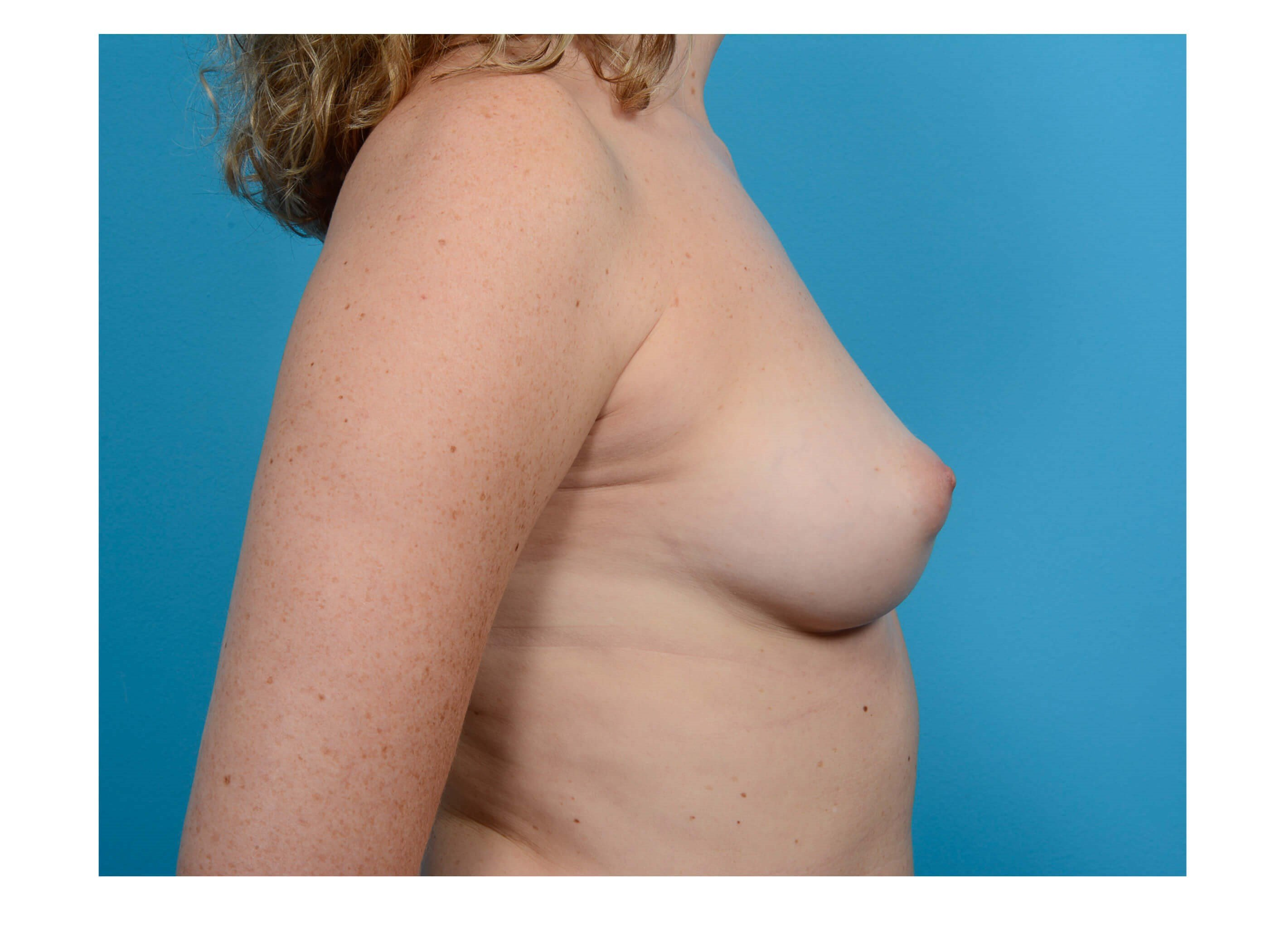 Breast Augmentation R Profile Before