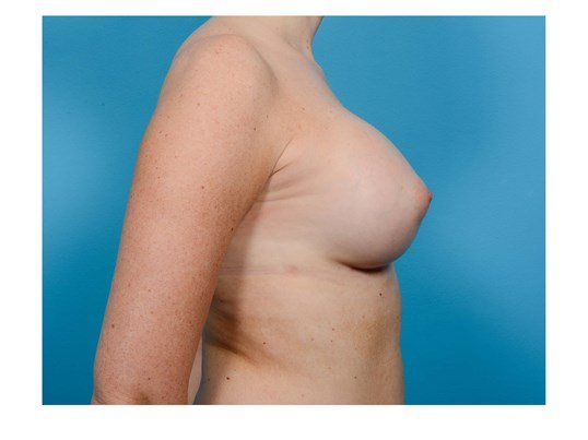 Breast Augmentation R Profile After