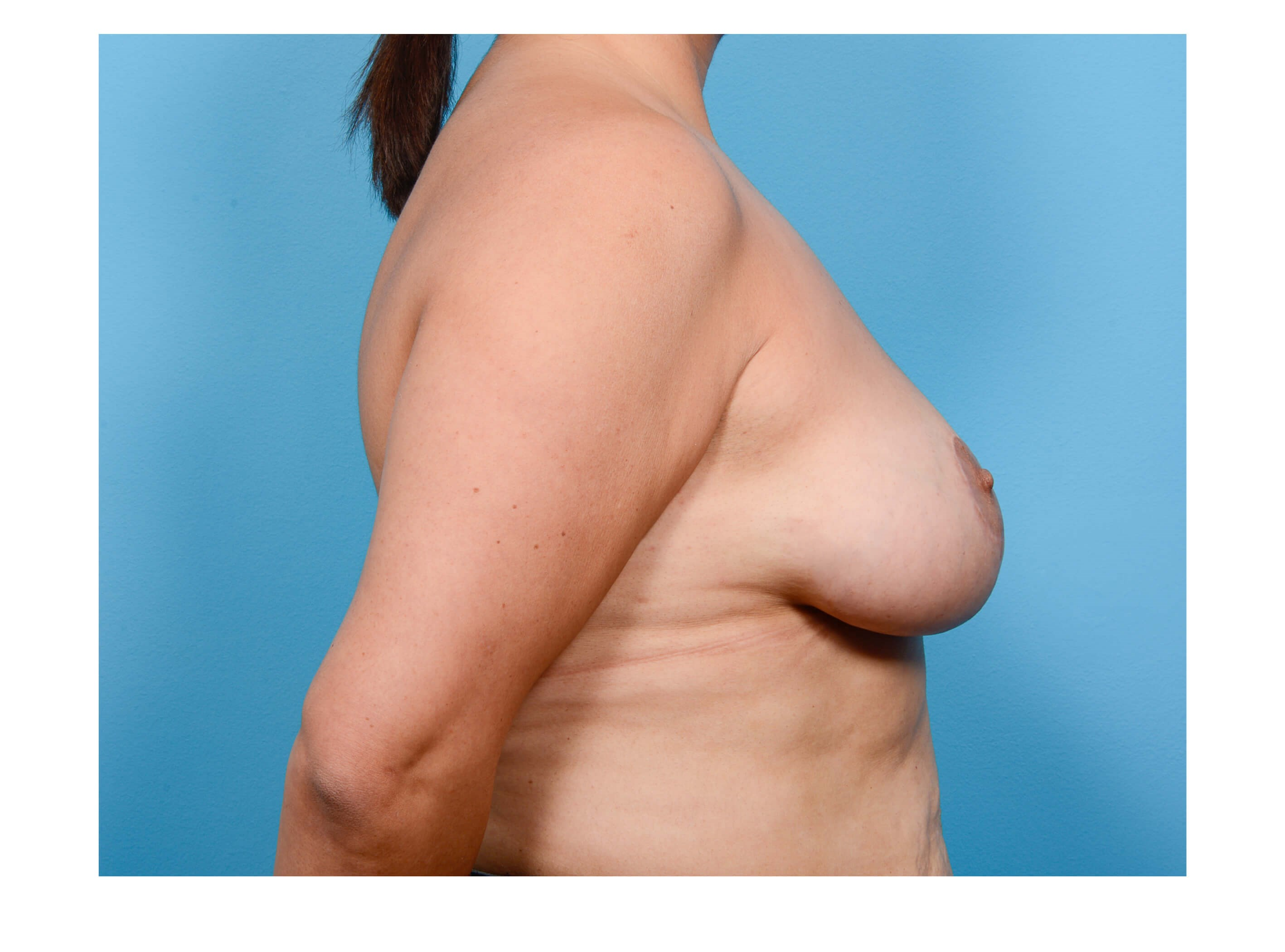 BREAST LIFT R PROFILE After
