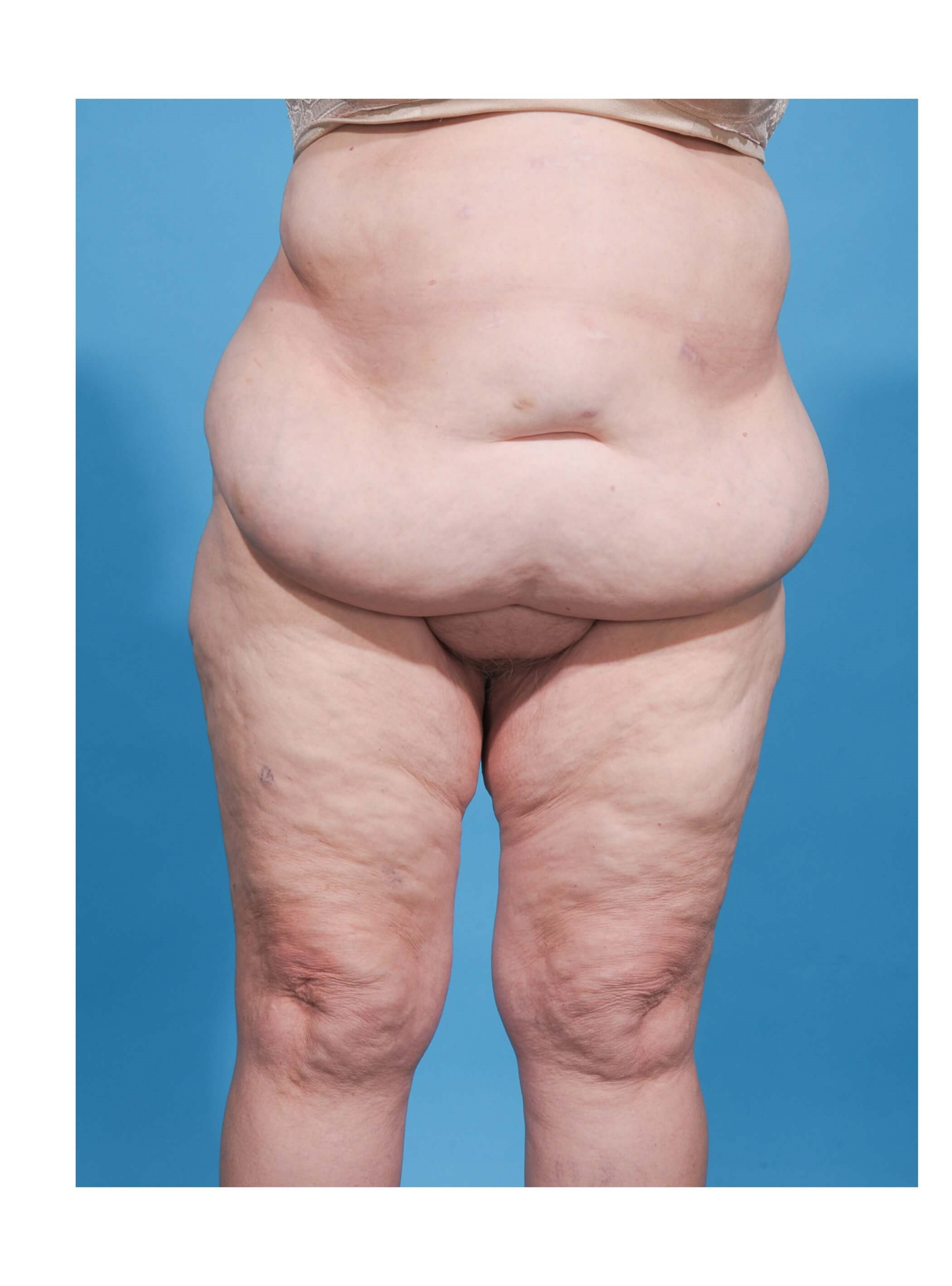 ABDOMINOPLASTY/PANNICULECTOMY Before