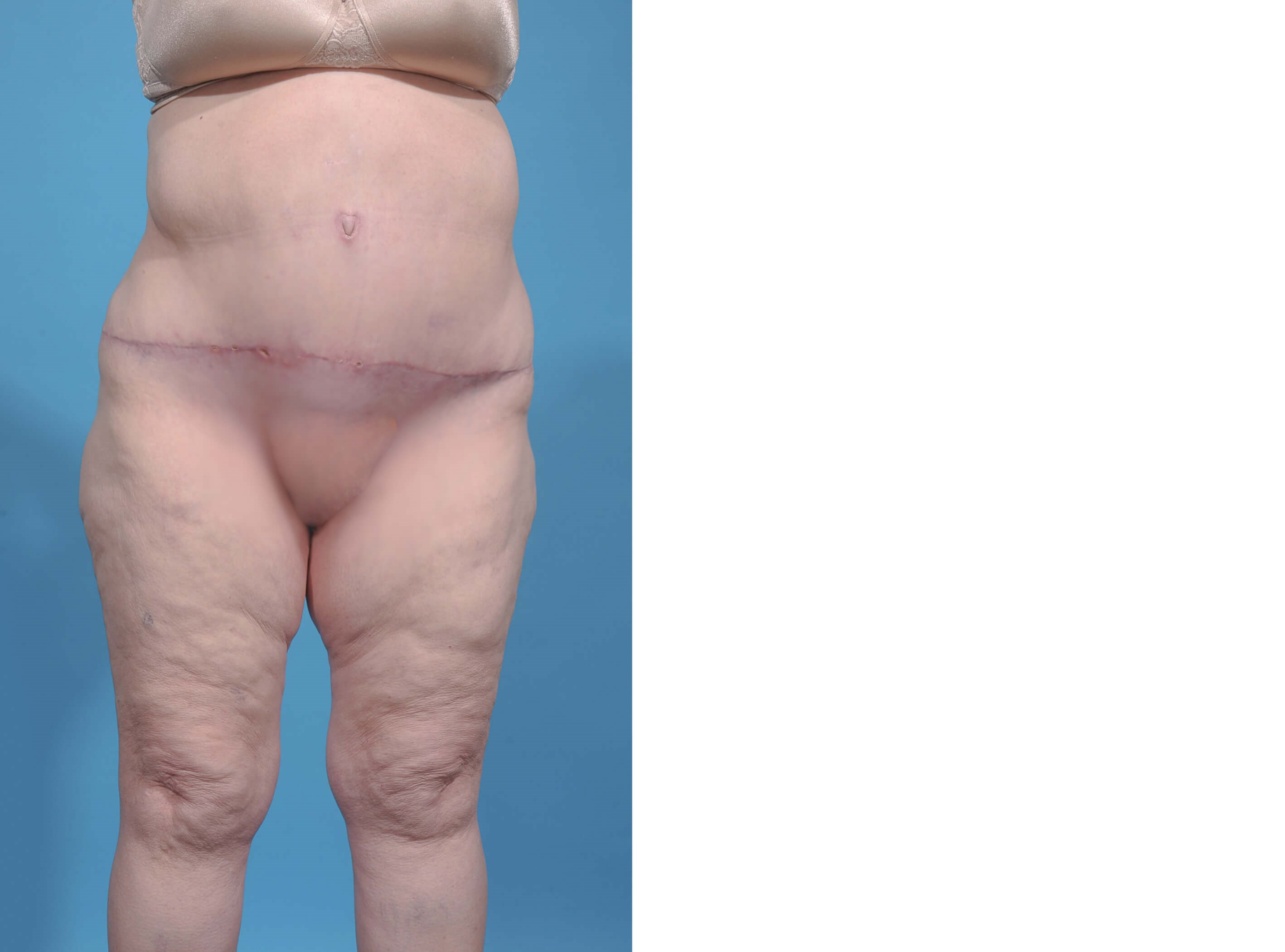 ABDOMINOPLASTY/PANNICULECTOMY After